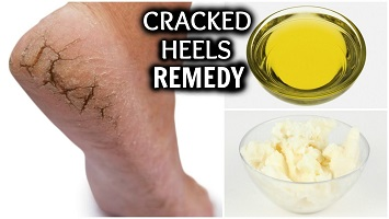 Cracked Heels Home Remedy Causes