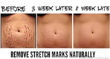 How To Clear Stretch Marks Naturally with Home Ingredients