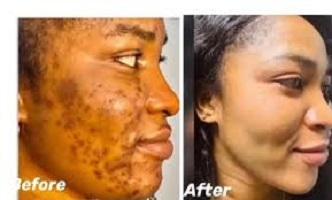 Natural Ways to Remove Facial Scars Fast at Home